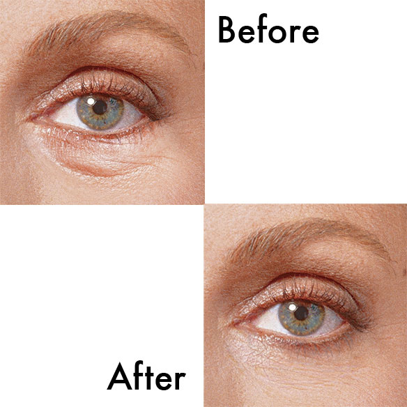 Sudden Change® Under Eye Firming Serum - View 1