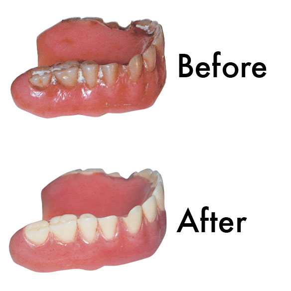 Sparkle Dent Denture Whitener - View 1
