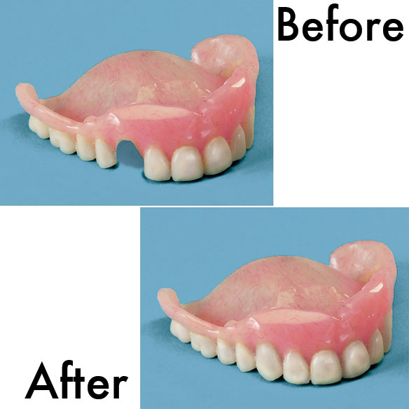 Denture Repair Kit - View 1